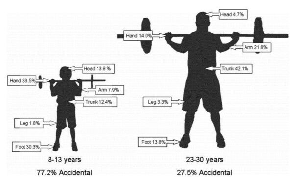 children get different injuries when lifting weights, but not the ones you might think